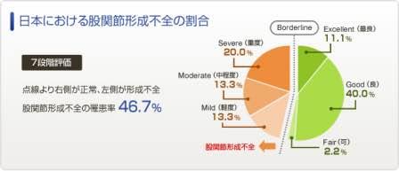 日本における股関節形成不全の割合