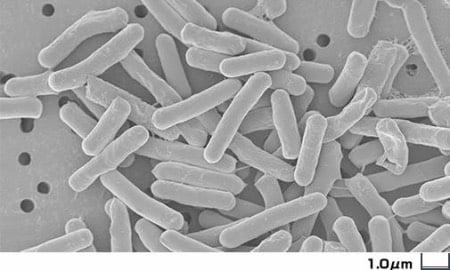 クロストリジウム菌下痢症(犬)
